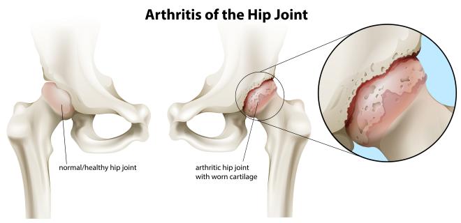 Arthritis Knee Pain  Back Pain  Cervical Spondylosis