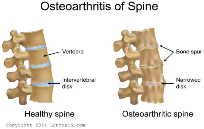 Lower Back Pain Slip Disc Nerve Pain