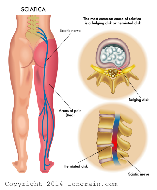 Lower Back Pain Slip Disc Nerve Pain